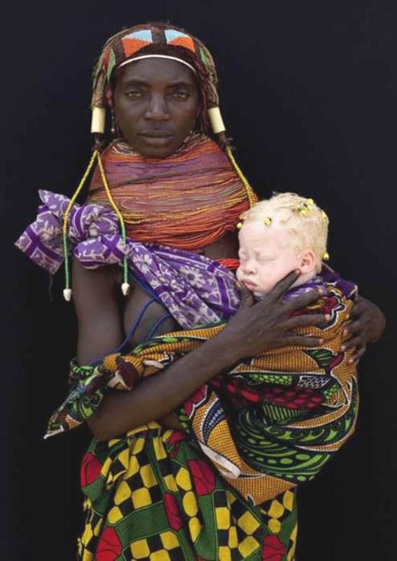 African_albino